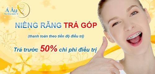 top-10-dia-chi-nieng-rang-tot-va-uy-tin-nhat-o-tphcm-2