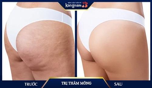 top-5-spa-tri-tham-mong-nach-ben-uy-tin-nhat-o-tphcm-2