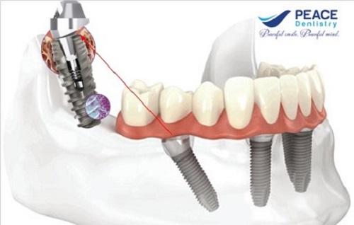 top-10-dia-chi-trong-rang-implant-uy-tin-nhat-tai-tphcm-1