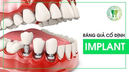 top-10-dia-chi-trong-rang-implant-uy-tin-nhat-tai-tphcm-13