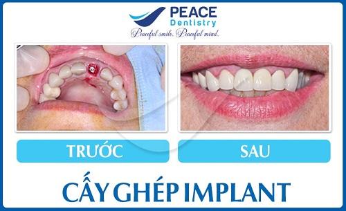 top-10-dia-chi-trong-rang-implant-uy-tin-nhat-tai-tphcm-2