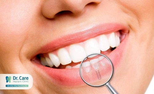 top-10-dia-chi-trong-rang-implant-uy-tin-nhat-tai-tphcm-3