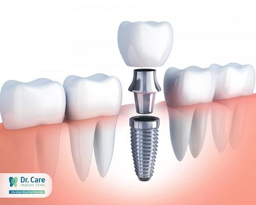 top-10-dia-chi-trong-rang-implant-uy-tin-nhat-tai-tphcm-4