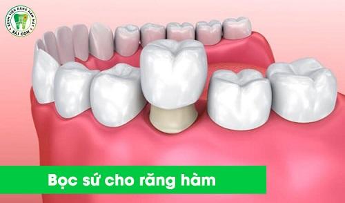 top-10-dia-chi-boc-rang-su-dep-uy-tin-nhat-tai-tphcm-1