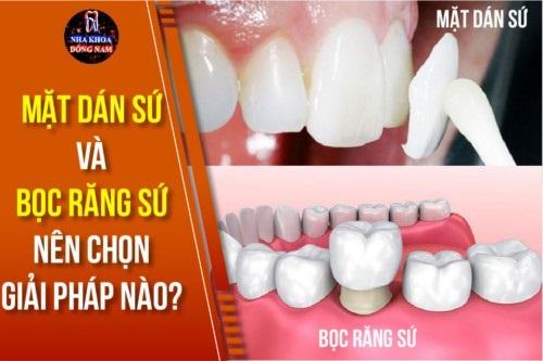 top-10-dia-chi-boc-rang-su-dep-uy-tin-nhat-tai-tphcm-7
