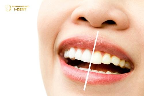 Top 10 địa chỉ bọc răng sứ đẹp, uy tín nhất tại TPHCM