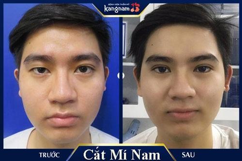 top-10-dia-chi-nhan-cat-mi-mat-dep-uy-tin-nhat-tai-tphcm-1