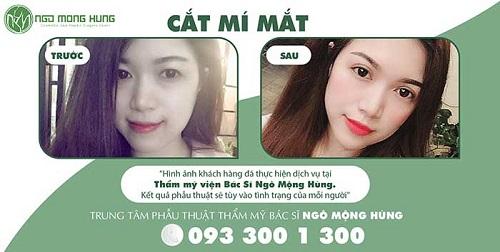 top-10-dia-chi-nhan-cat-mi-mat-dep-uy-tin-nhat-tai-tphcm-5