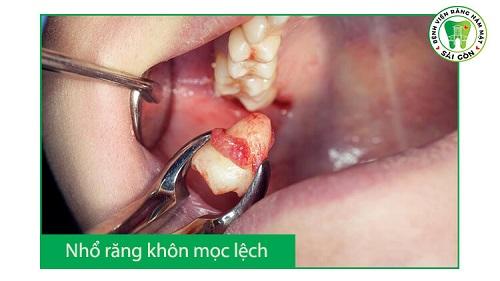 top-7-dia-chi-nho-rang-khon-uy-tin-gia-tot-tai-tphcm-2
