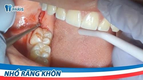 top-7-dia-chi-nho-rang-khon-uy-tin-gia-tot-tai-tphcm-4