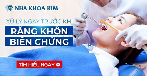 top-7-dia-chi-nho-rang-khon-uy-tin-gia-tot-tai-tphcm-7