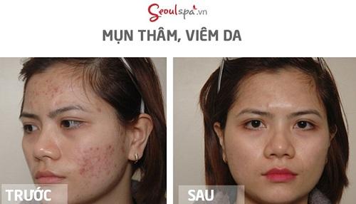 seoul-spa-quan-10-6