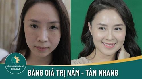 top-5-dia-chi-tri-nam-tan-nhang-hieu-qua-uy-tin-tai-tphcm-3