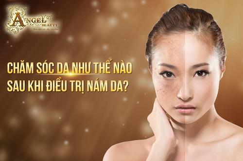 top-5-dia-chi-tri-nam-tan-nhang-hieu-qua-uy-tin-tai-tphcm-4