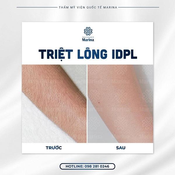 top-5-spa-triet-long-an-toan-uy-tin-nhat-o-quan-1-tp-hcm-5