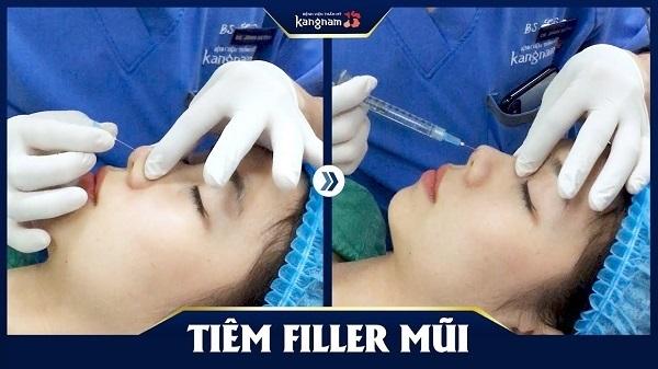 Top 10 địa chỉ tiêm Filler – Botox uy tín, an toàn nhất ở Hà Nội