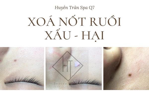 top-5-dia-chi-xoa-not-ruoi-hieu-qua-nhat-o-quan-7-tphcm-5