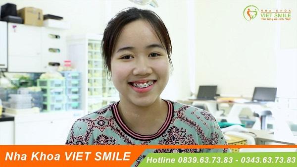 Top 10 địa chỉ niềng răng tốt và uy tín nhất tại Hà Nội