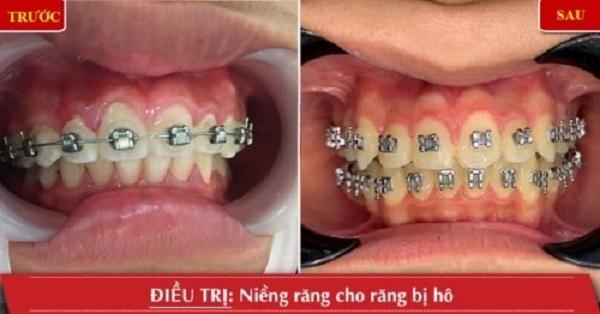 top-10-nha-khoa-nieng-rang-tra-gop-uy-tin-nhat-tai-tp-hcm-6