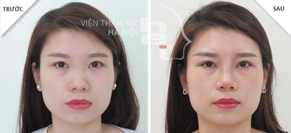 Top 10 địa chỉ nâng mũi đẹp và uy tín nhất tại Hà Nội
