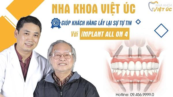 top-10-dia-chi-trong-rang-implant-uy-tin-nhat-tai-ha-noi-11