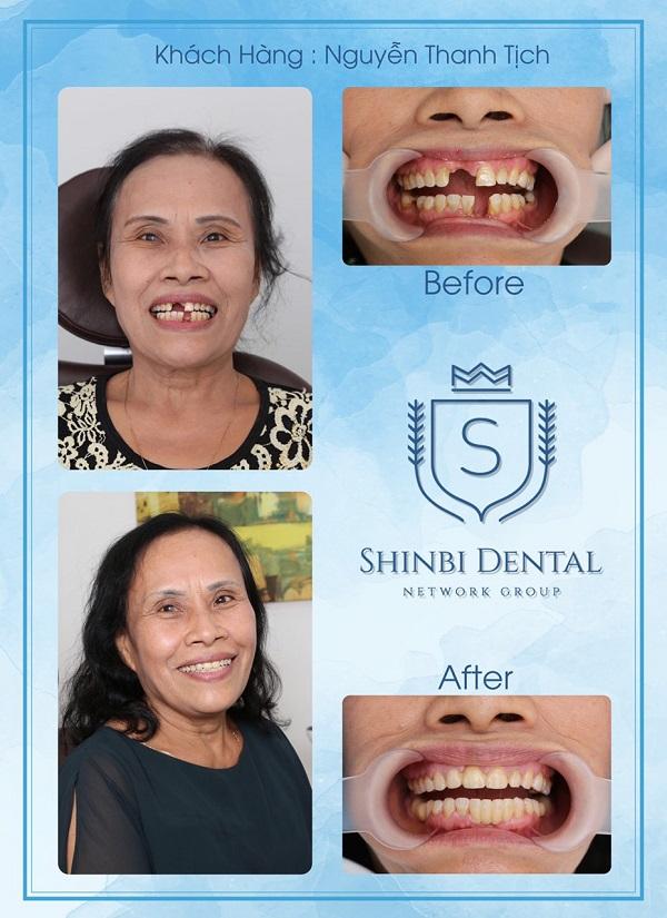 top-10-dia-chi-trong-rang-implant-uy-tin-nhat-tai-ha-noi-2