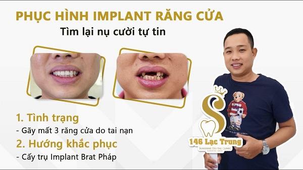 top-10-dia-chi-trong-rang-implant-uy-tin-nhat-tai-ha-noi-4