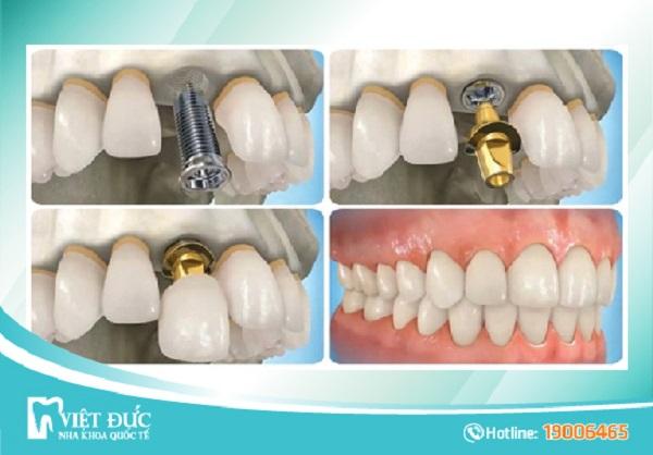 top-10-dia-chi-trong-rang-implant-uy-tin-nhat-tai-ha-noi-6
