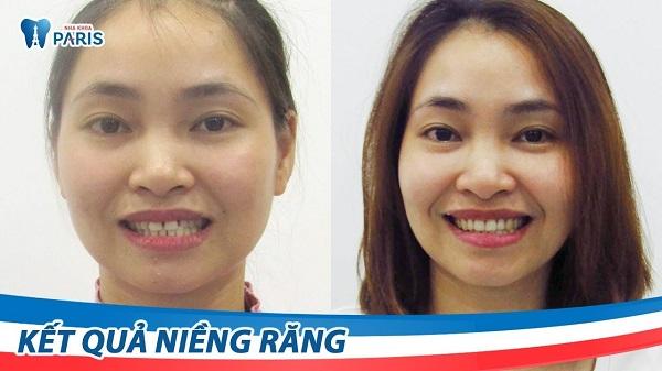 top-8-dia-chi-nieng-rang-uy-tin-nhat-tai-da-nang-8