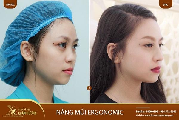 Top 5 địa chỉ nâng mũi đẹp, uy tín nhất tại Hà Nội